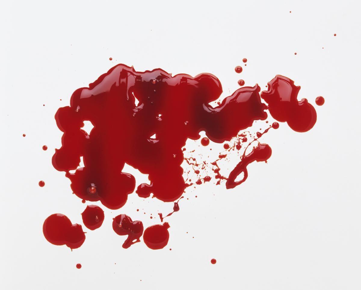 Le réseau social a provoqué un tollé en supprimant la photo de dos d'une utilisatrice couchée sur le côté avec une tâche de sang sur son…