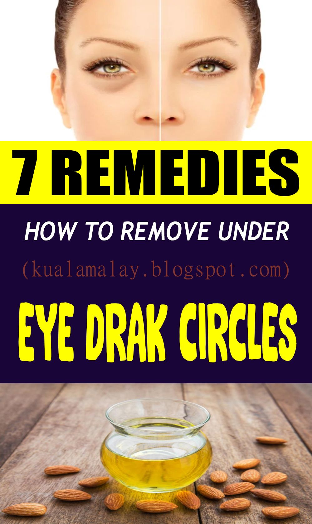 7 Remedies How To Remove Under Eye Dark Circles | Remedies ...
