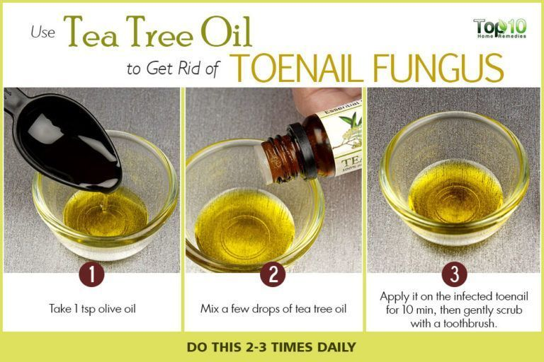 tea tree oil to get rid of toenail fungus #NailFungusYoungLiving ...