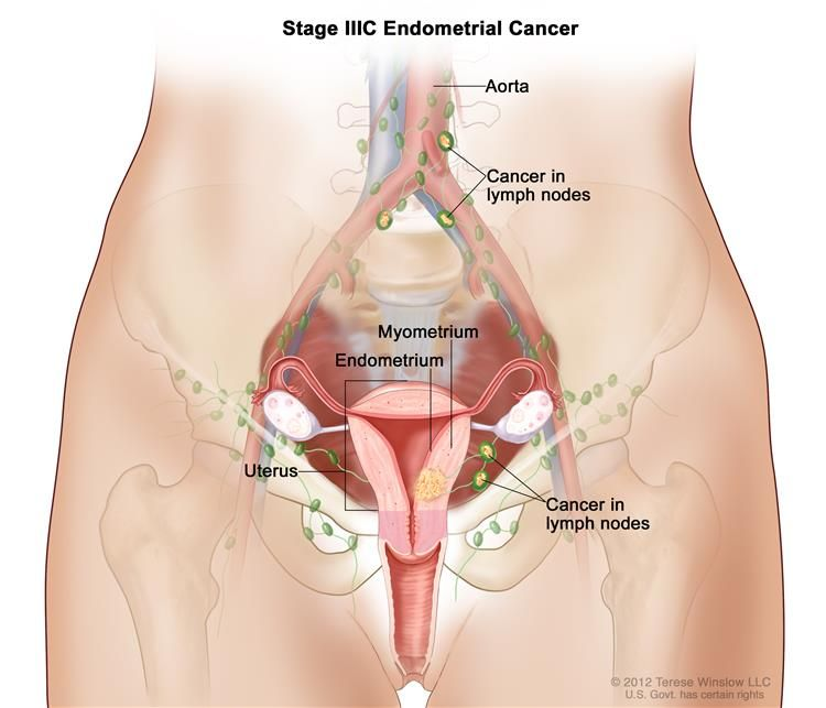 Stage IIIC endometrial cancer shown in a cross-section drawing of ...