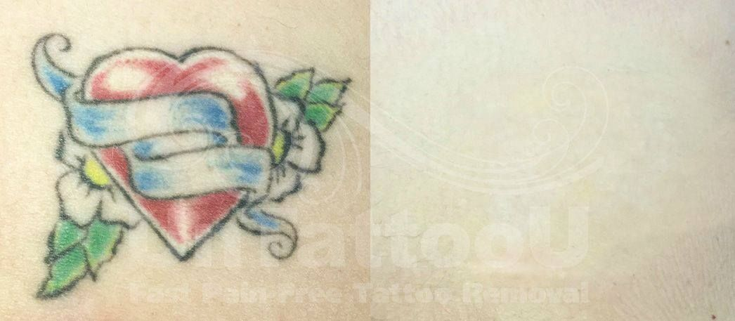 Picosure laser tattoo removal before after free