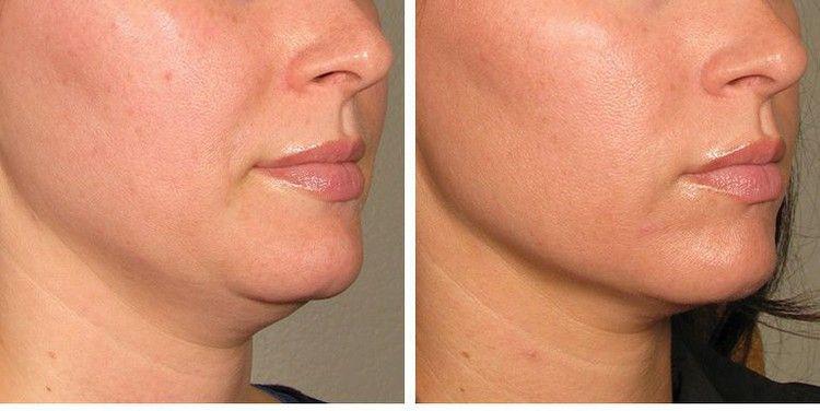How Laser Skin Tightening Works Elle Laser Skin Tightening Skin Tightening Treatments Skin Tightening
