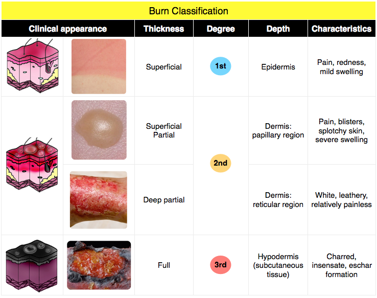 Burn Classification Splotchy Skin Integumentary System Nursing
