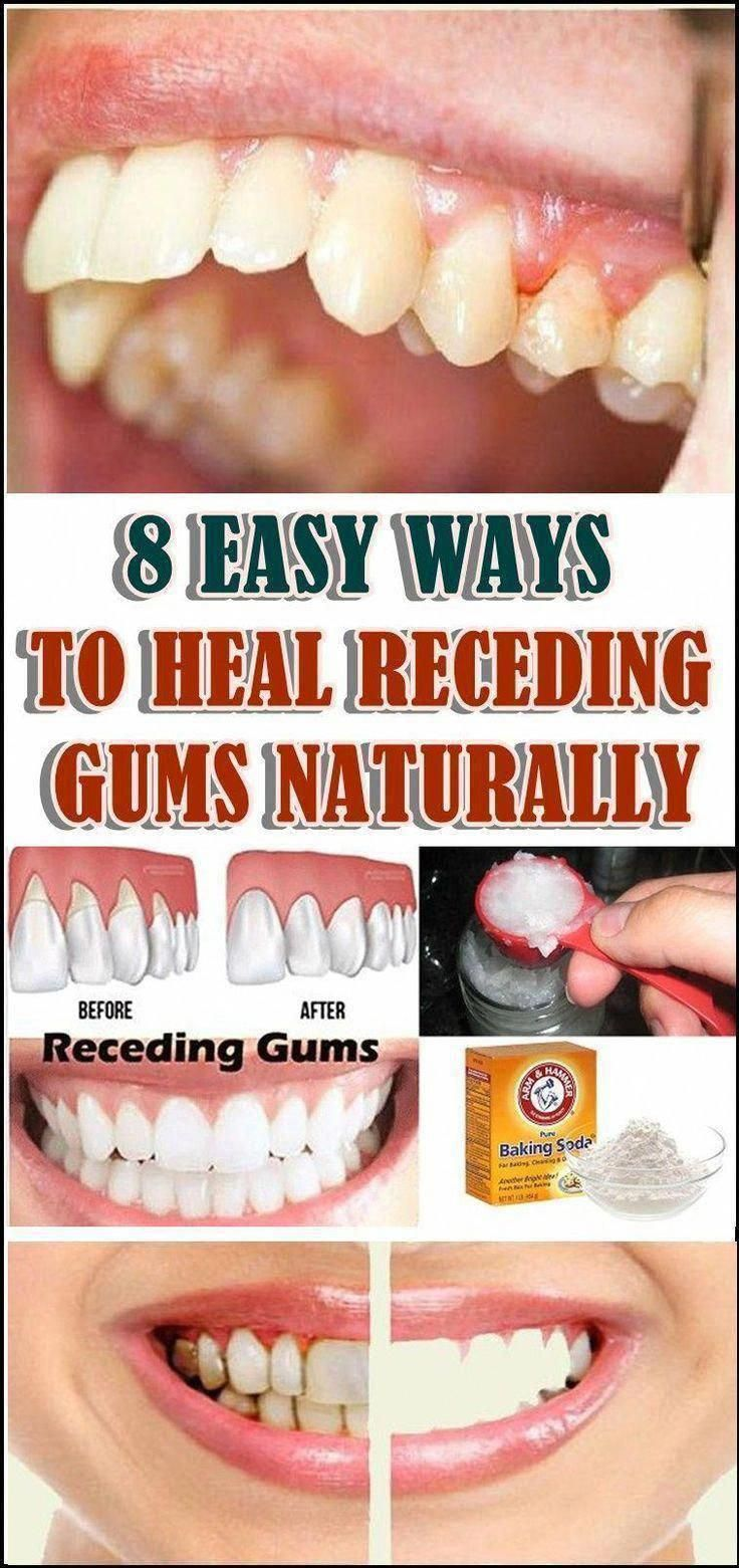 8 EASY WAYS TO HEAL RECEDING GUMS NATURALLY