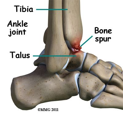 Ankle Joint, Bone Spur | random | Ankle arthritis, Ankle bones