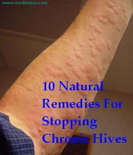 10 Natural Remedies For Stopping Chronic Hives | Home health remedies, Good  health tips, Natural home remedies
