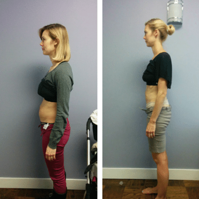 before and after the ab system  diastasis wwwbelliesinc