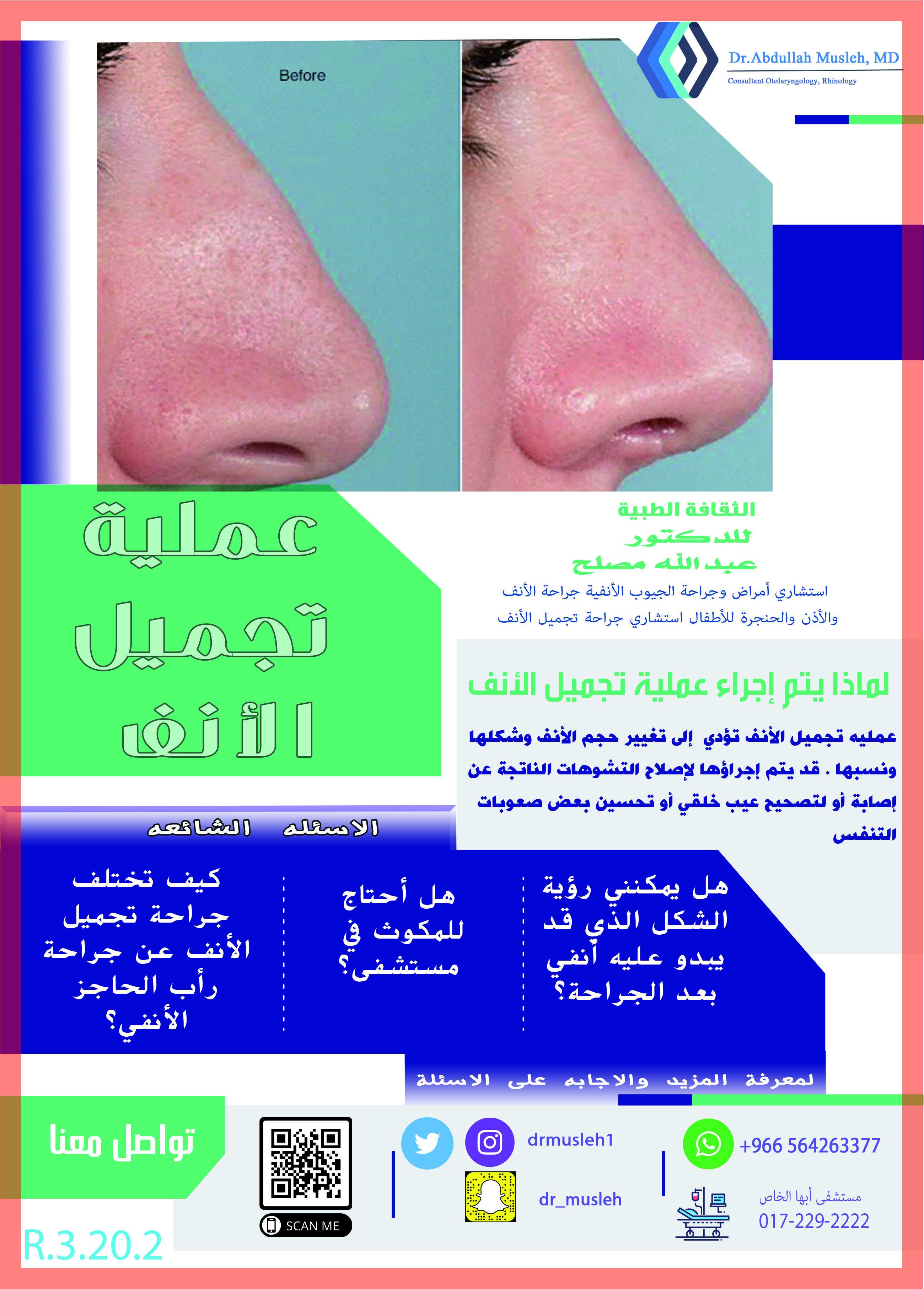 لماذا يتم إجراء عملية تجميل الأنف Nose Ring Nose Slu