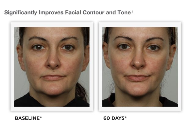 toning seattle Facial