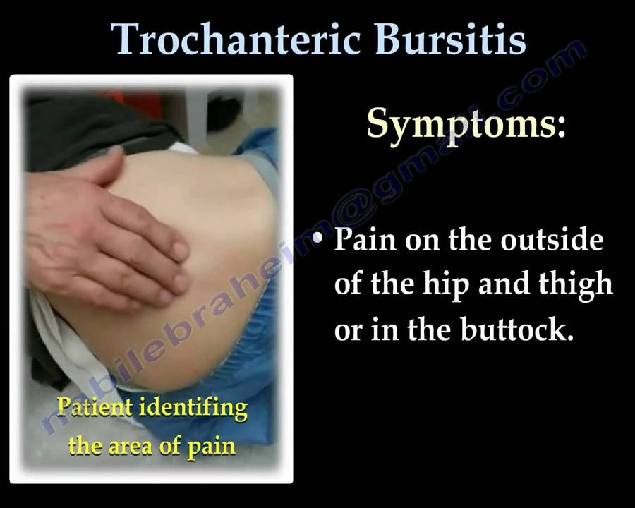 Trochanteric Bursitis , hip bursitis- Everything You Need To Know ...