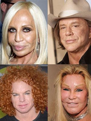 Celebrity plastic surgery mishaps