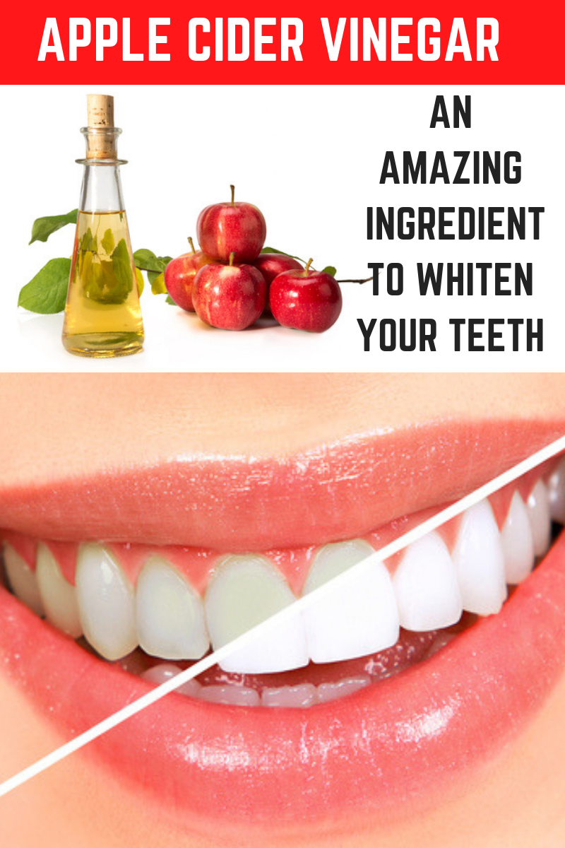 How To Use Apple Cider Vinegar To Whiten Yellow Teeth At Home