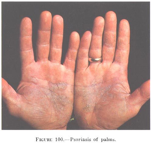 29 de Octubre: D& #237;a Mundial de la Psoriasis: La psoriasis (AFI: [so& #712;&…