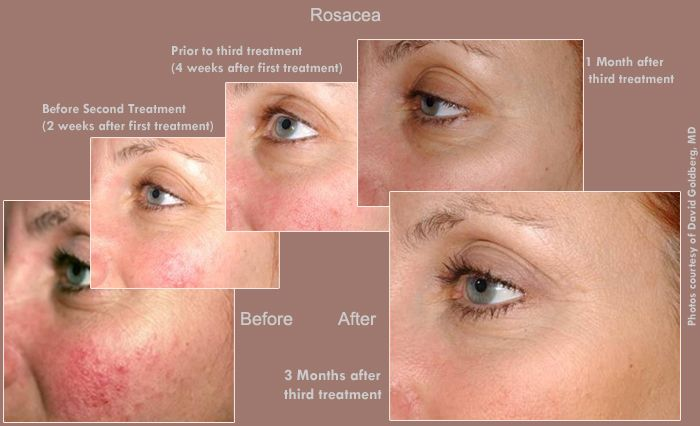 The Laser Genesis Has Shown To Effectively And Safely Reduce
