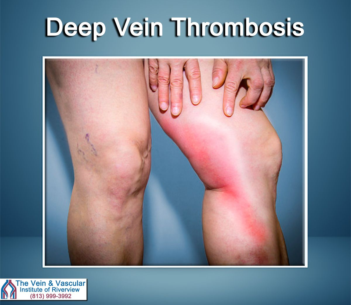 To Diagnose A Dvt A Vascular Ultrasound Would Be Needed