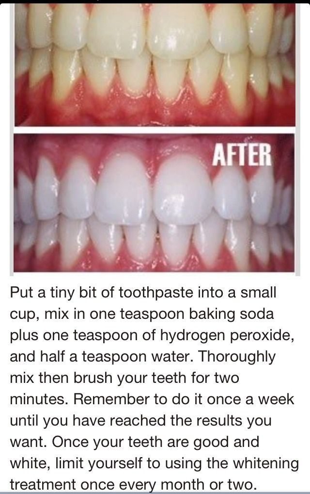 toothpaste, baking soda, hydrogen peroxide to whiten teeth! sounds awesome, but for some reason, if feel like i might poison myself haha - Beauty Ideaz