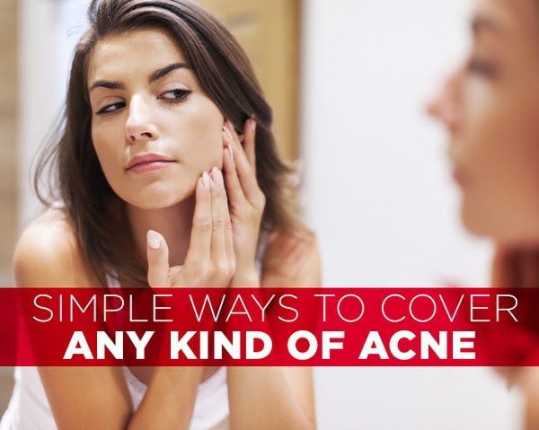 Simple Ways to Cover ANY Kind of Acne - Photo by: Shutterstock http://www.womenshealthmag.com/beauty/acne-cover-up