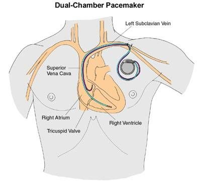 Double Pacemaker Chamber Versus Single