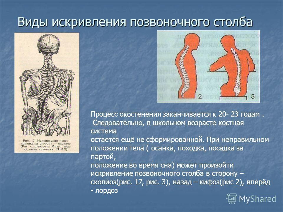 Школьные презентации.ru по биологии 8 класс опорно-двигательная система