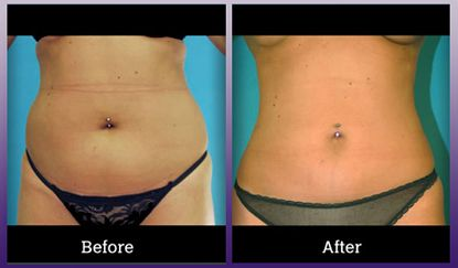 Look great in your bikini this summer with the help of Laser Liposuction!