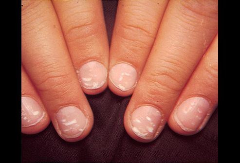 Most Cases This Is Due To A Zinc Deficiency Or Injuries To The Nail Bed It Can However White Spots On Nails White Dots On Nails Nails