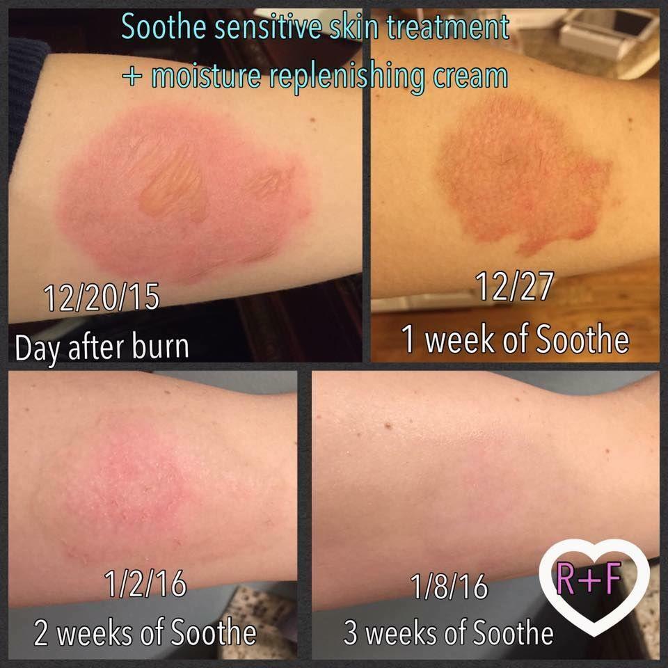 Dermatologist Created Skincare Products Rodan Fields Sensitive Skin Treatment Rodan And Fields Soothe Rodan And Fields