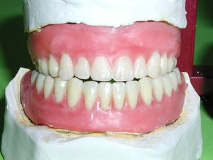 Homemade Denture Cleaning Products Missing Teeth, Cleaning Recipes, Cooking Recipes, Cleaning Products,