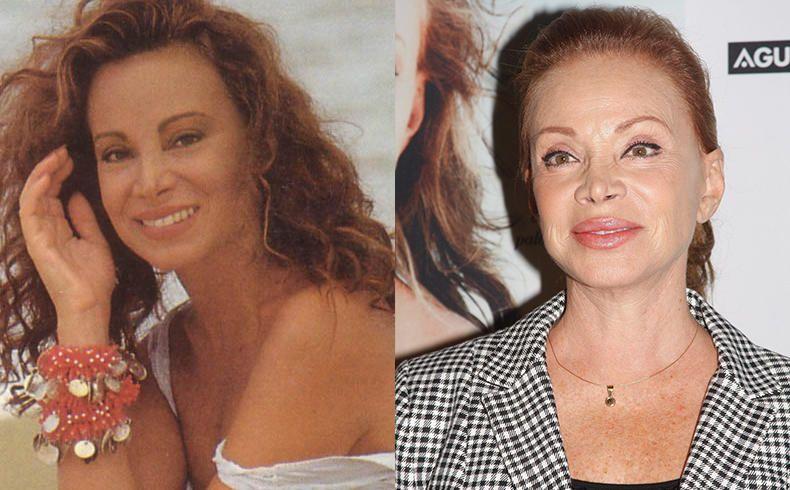 Paloma San Basilio Antes Y Después De La Cirugía Famous Before