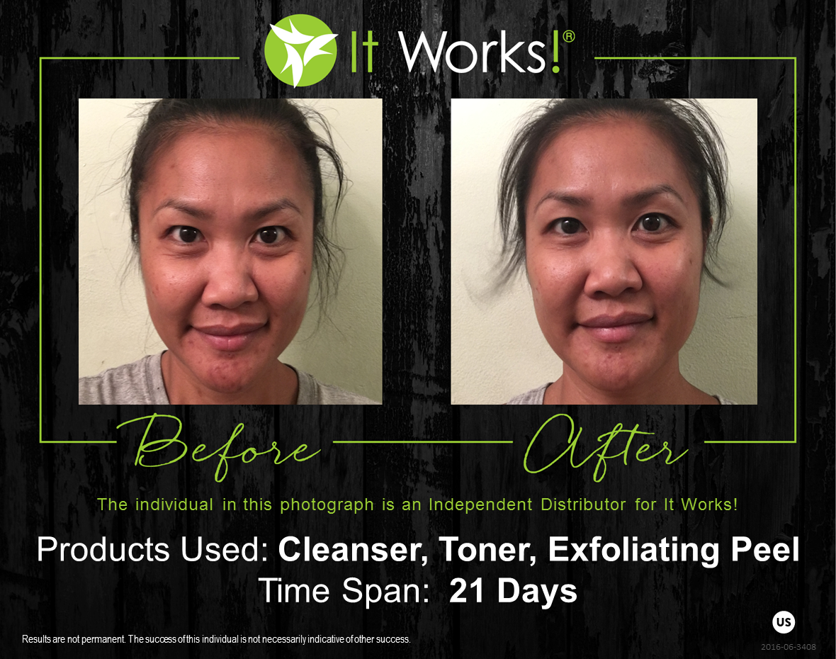 Check Out These Ultimate Results From Using A Combination Of Our Products Exfoliating Peel Cleanser And Toner Peeling Skin