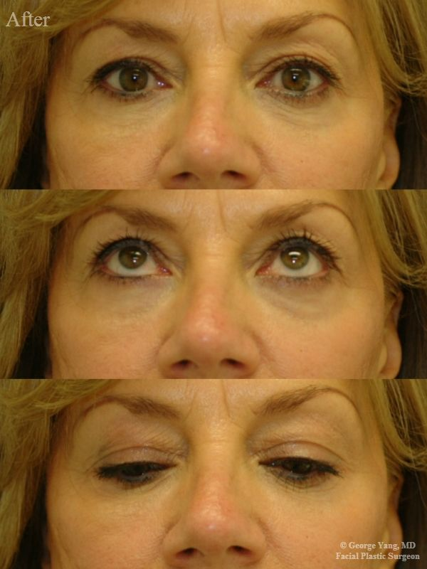 55 year-old woman underwent Restylane injections to blend her