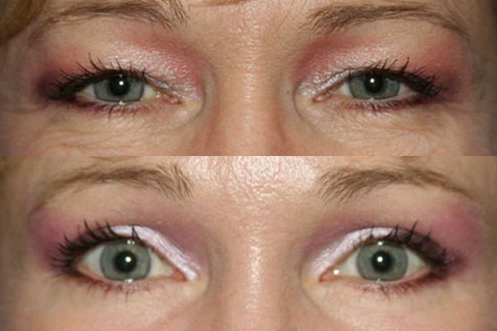 Before-and-after shots of a patient's brow lift from The ...
