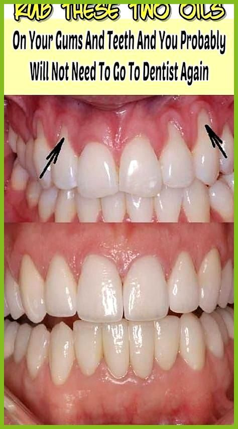 Despite the usual way of maintaining dental hygiene toothpaste toothbrush and dental floss it is useful to be utilized the advantages that offer Despite the usual way of...