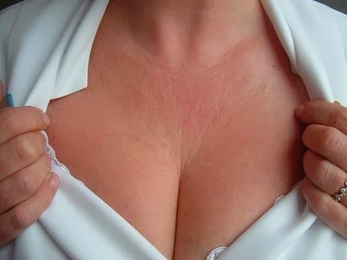 How to get rid of chest wrinkles