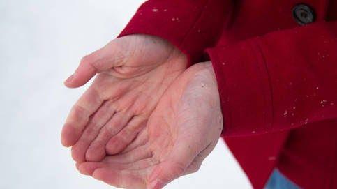 Noto cómo mis dedos de las manos mis tobillos las piernas o los brazos se van poniendo muy rígidos. Y lo peor de todo es que sé que es un proceso irreversible que los tejidos de mi piel se están endureciendo poco a poco como si me estuviera convirtiendo en piedra asegura Soledad Pérez a El Confidencial.  Esta mujer de 55 años que reside en un pueblo de Guadalajara tiene esclerodermia una enfermedad reumática autoinmune que afecta a su dermis y otros órganos del cuerpo. Su sistema inmunitario l #tejidos