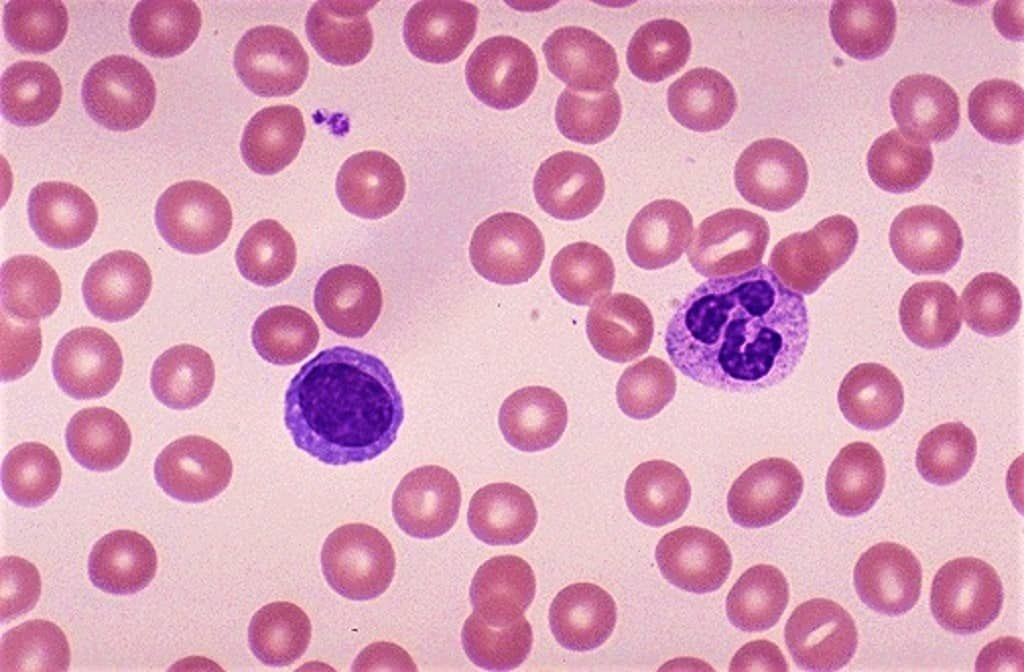Pin On Hematology
