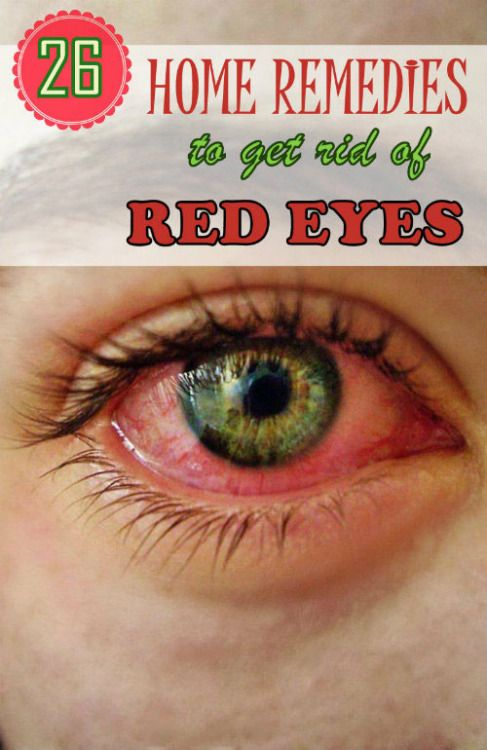 Home Remedy Hacks • 26 Effective Home Remedies to Get Rid of Red Eyes