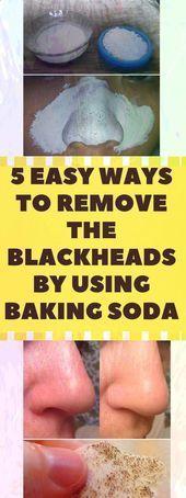 #Baking #Blackheads #Easy #Fitness #heal #Remove #Baking #Blackheads #Easy #Fitness #heal #Remove