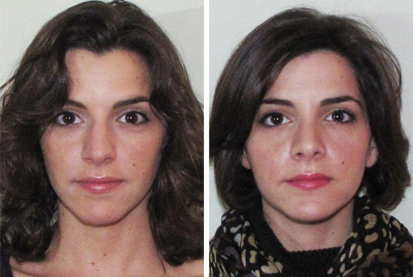 Before and After Nasal Photos Dr Garrett NY