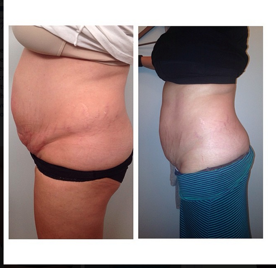 Pin By The Doctors Beauty Bar On About Us Body Contouring Conturing Treatment
