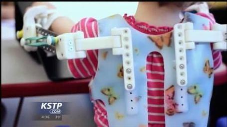 #3dprinter creates prosthetics for children