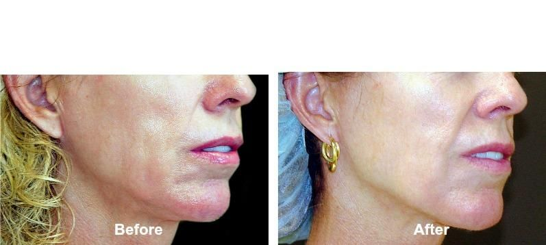 Enjoy a contoured neck and jawline again with Thermage skin
