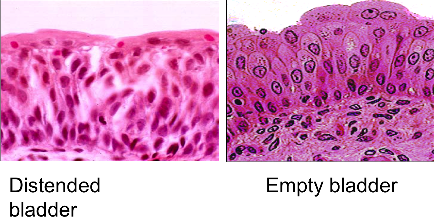transitional epithelium dome shaped cells - google search | a nbde