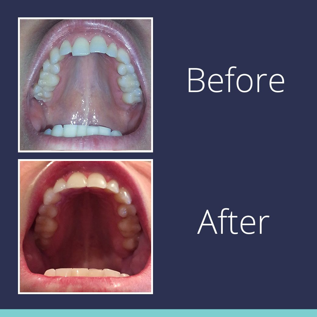 Fake And Real Smile Direct Club Clear Aligners