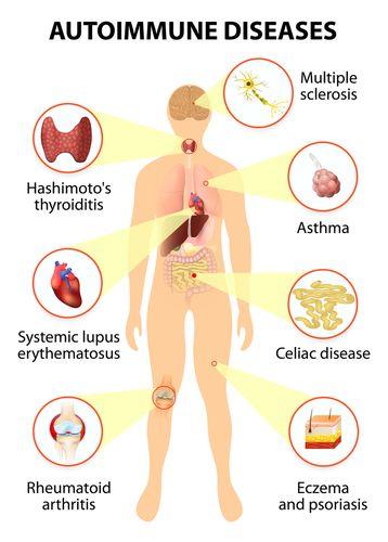 Root Cause of Celiac Disease: Autoimmune Disease | saúde