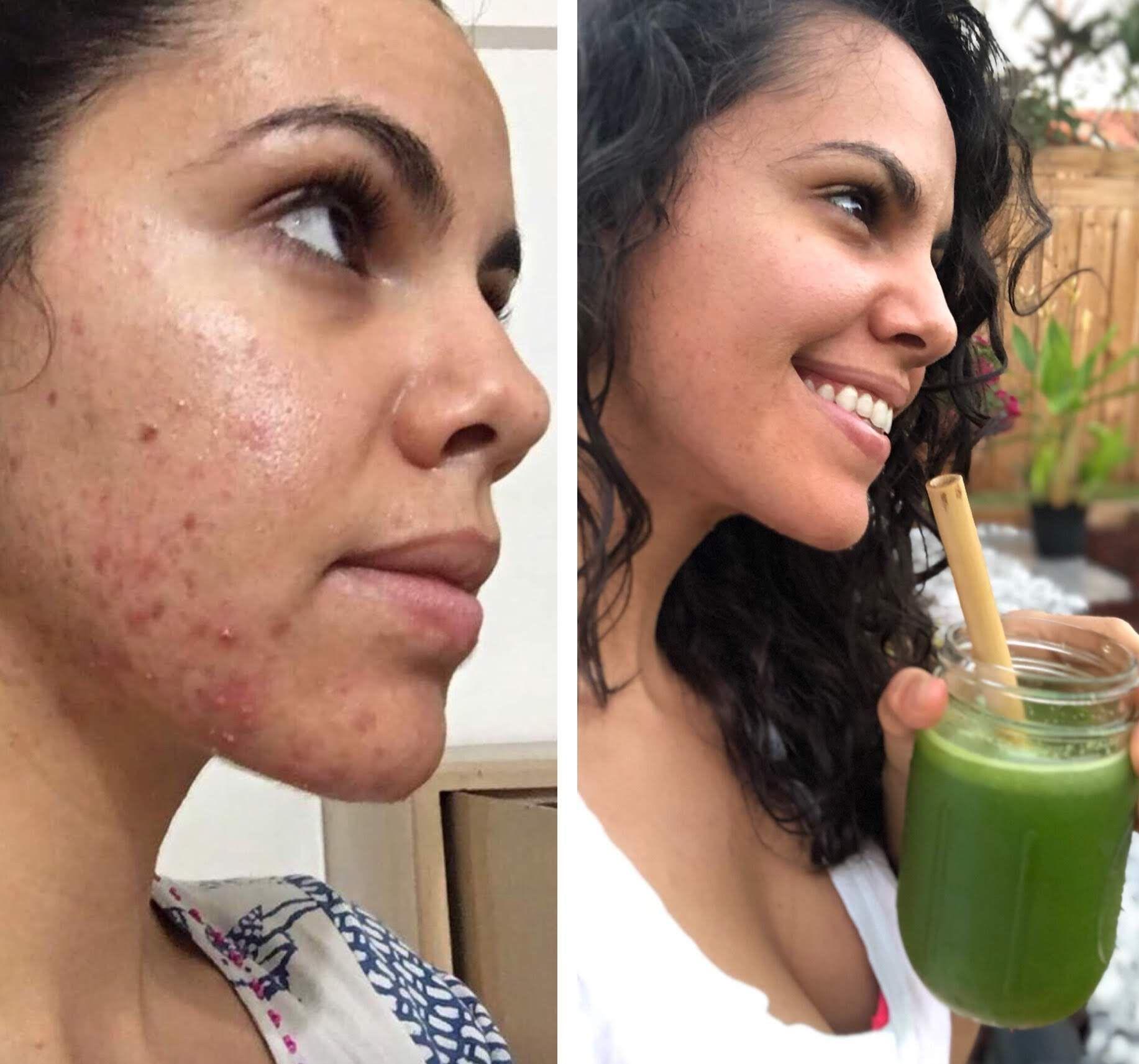Jtg 8 Heal Cystic Acne W The Medical Medium Skin Health