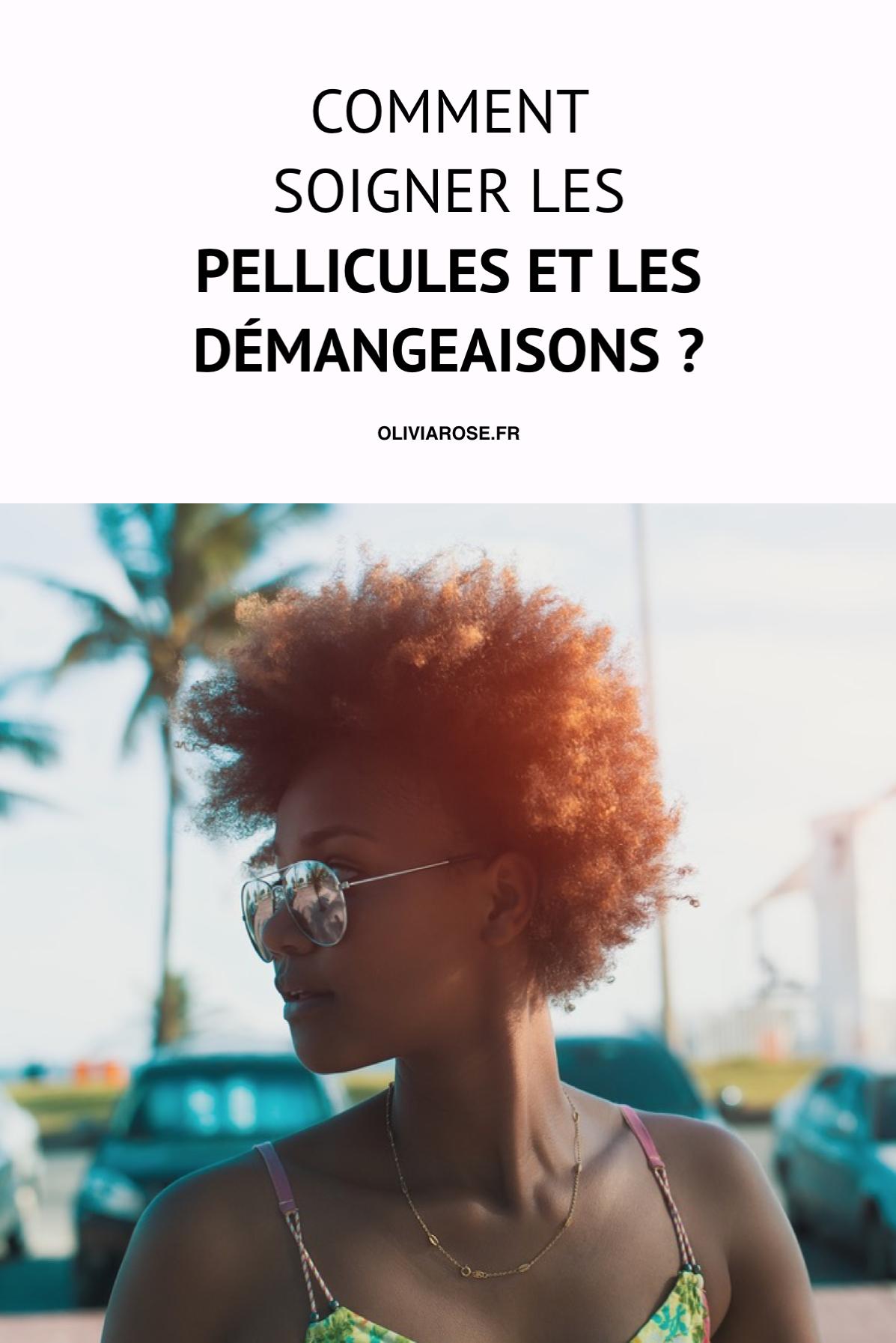 1000 Ides Sur Le Thme Traitements Du Cuir Chevelu Sur Pinterest