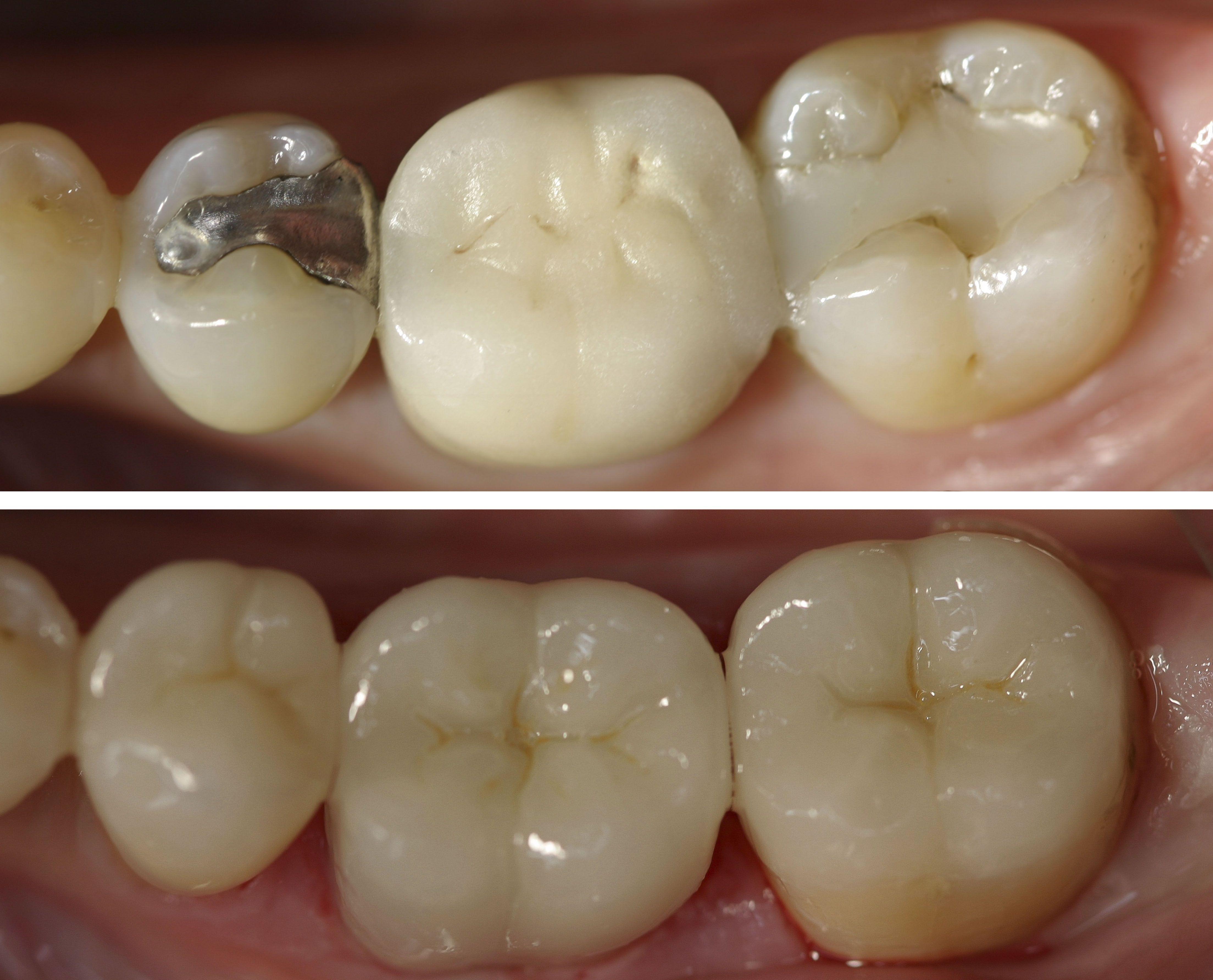 How Long Do Fillings Last Windsor Dentists Dental Fillings Tooth Filling Dental