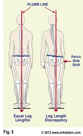 Welcome to sport spinal rehab hip muscles muscles and glutes publicscrutiny Images