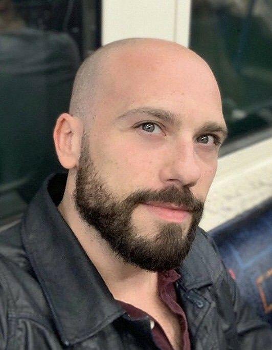Pierdere în greutate chelie de model masculin. Ce este pierderea părului cu model masculin?