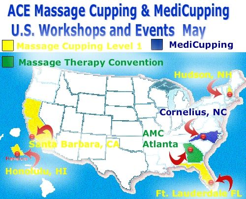 Seven outstanding professionals conduct ACE Massage Cupping ...
